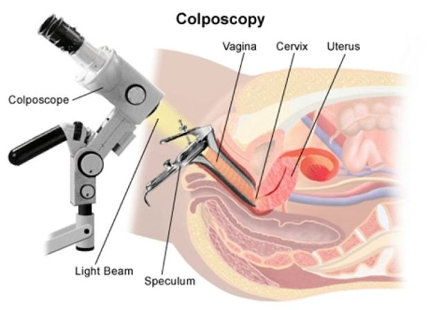 Кольпоскопия при беременности: показания и особенности проведения
