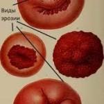Истинная эрозия шейки матки: симптомы, причины и лечение
