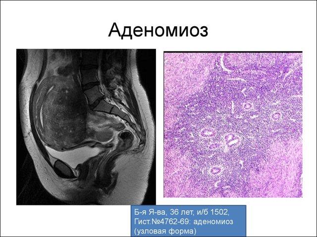 Аденомиоз и беременность: вероятность и последствия сочетания
