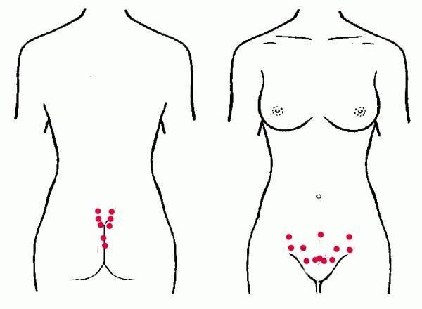 Гирудотерапия при эндометриозе: показания, противопоказания