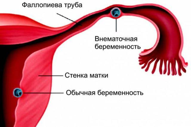 Внематочная беременность: на каком сроке лопается труба, как это происходит?