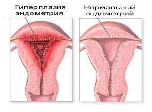 Диета при гиперплазии эндометрия: разрешенные продукты
