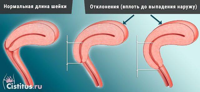 Элонгация шейки матки: причины, симптомы, диагностика, лечение