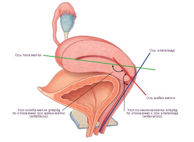 Ретродевиация матки: особенности, разновидности