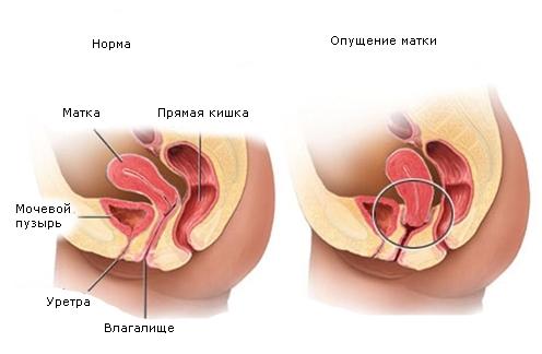 Латеропозиция матки: причины, симптомы и лечение