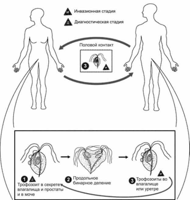 Трихомониаз при беременности: последствия, лечение