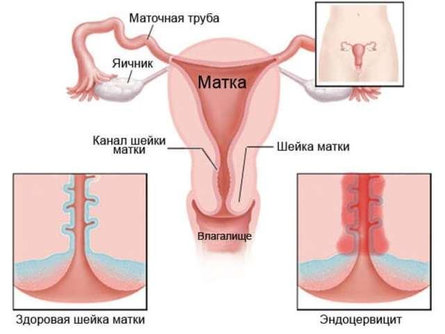 Эндоцервицит шейки матки: особенности, диагностика и лечение