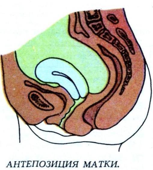 Антеверсия матки: особенности и причины явления