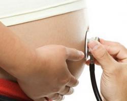 Что такое гестационный срок беременности, значение термина