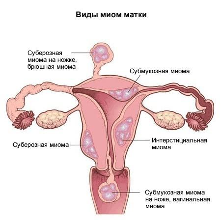 Фиброиды матки: определение и способы лечения