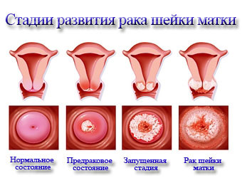Метастазы при раке шейки матки: особенности, причины