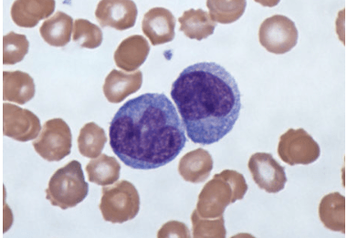 Моноциты повышены при беременности в крови: причины, лечение