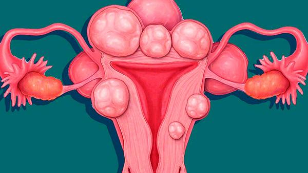 Миома матки: симптомы и признаки новообразования