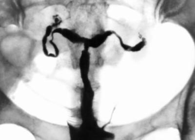 Спайки и непроходимость маточных труб: диагностика и лечение