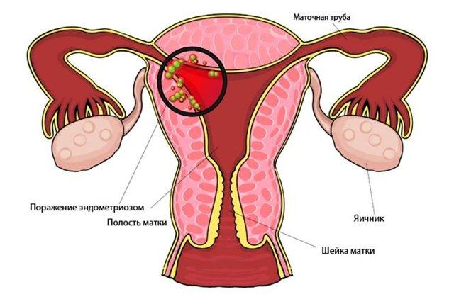 Фолиевая кислота при эндометриозе: зачем нужна?