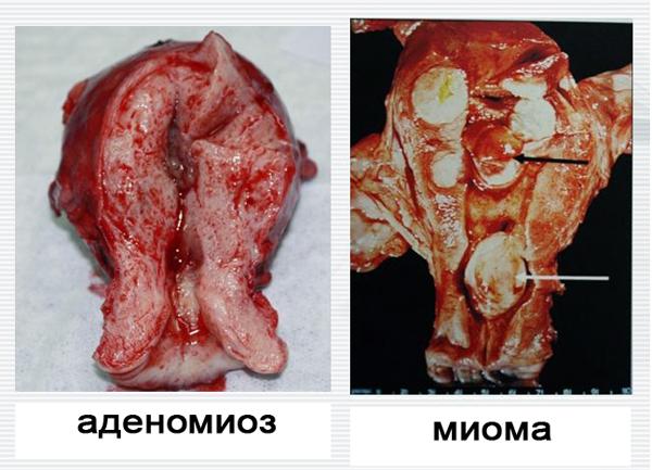 Миома матки в сочетании с аденомиозом: особенности