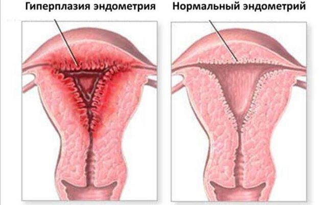 Кровотечение при гиперплазии эндометрия: виды и лечение