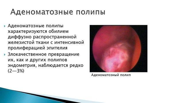 Аденоматозный полип эндометрия: специфика и лечение