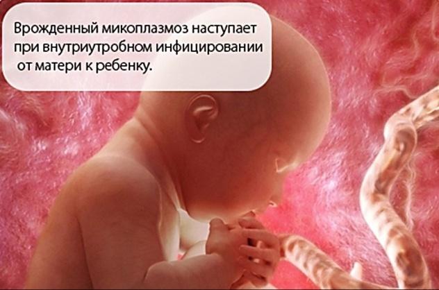 Микоплазма при беременности: причины, лечение