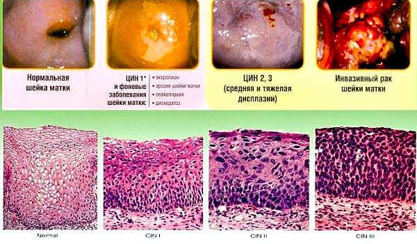 Рак шейки матки и беременность: шансы на зачатие, способы лечения