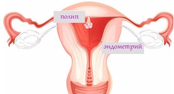 Железисто-фиброзный полип эндометрия: особенности и лечение
