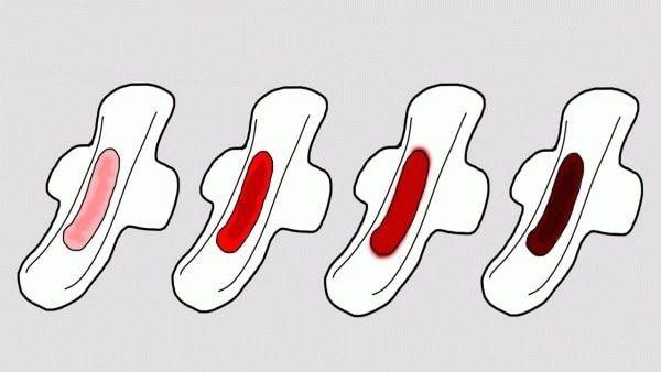 Действительно ли идут месячные при внематочной беременности?