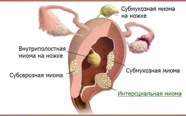 Интерстициальная миома матки: характеристики, особенности, лечение