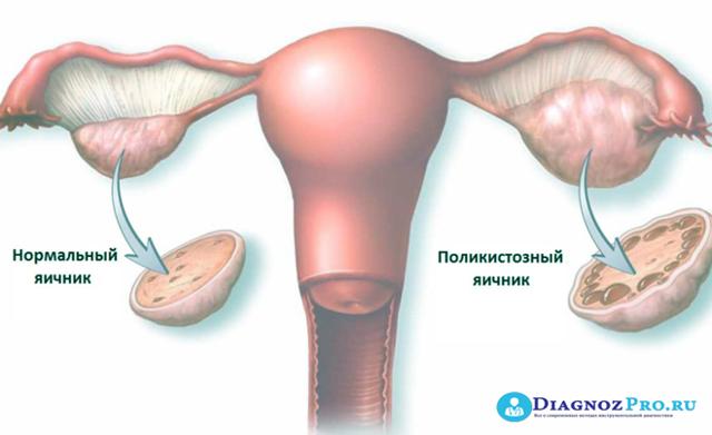 Овуляция после лапароскопии: когда планировать беременность?
