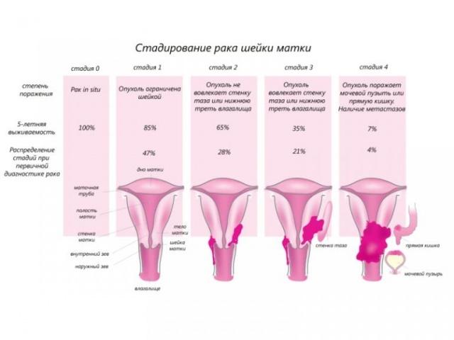 Диагностика рака шейки матки: основные методы