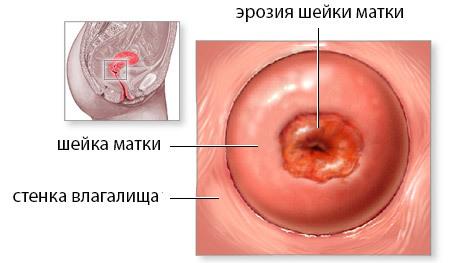 Радиоволновое лечение эрозии шейки матки: ход манипуляции и особенности