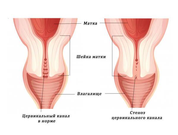 Стеноз шейки матки: особенности протекания, диагностика