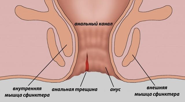 Кал с кровью при беременности: причины, лечение