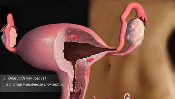 Эхопризнаки аденомиоза: суть признаков и диагностическое значение
