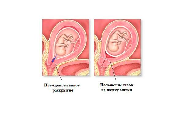 Ушивание шейки матки при беременности: показания и противопоказания